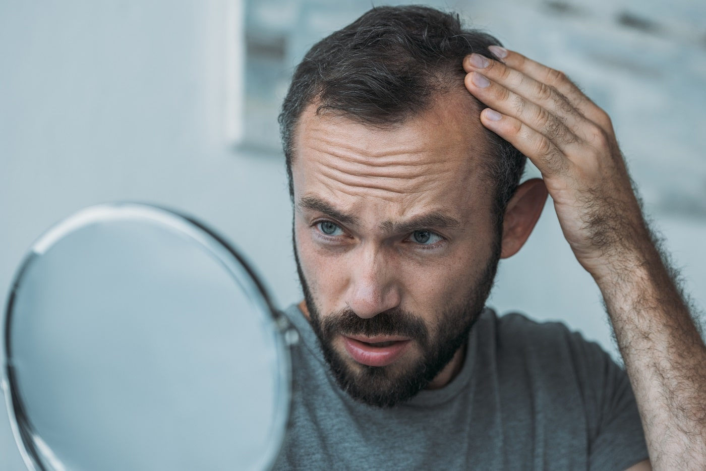 upset middle aged man with alopecia looking at mirror min